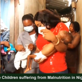 [VIDEO] More Nigerian Children suffering from malnutrition - Dr Edu, Commissioner of Health Cross Rivers State